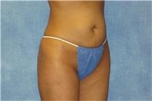 Liposuction After Photo by George John Alexander, MD, FACS; Las Vegas, NV - Case 32750