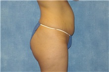 Liposuction Before Photo by George John Alexander, MD, FACS; Las Vegas, NV - Case 32750
