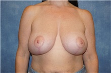 Breast Lift After Photo by George John Alexander, MD, FACS; Las Vegas, NV - Case 33254