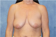 Breast Lift Before Photo by George John Alexander, MD, FACS; Las Vegas, NV - Case 33254