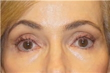 Brow Lift After Photo by George John Alexander, MD, FACS; Las Vegas, NV - Case 33882