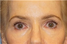 Brow Lift Before Photo by George John Alexander, MD, FACS; Las Vegas, NV - Case 33882