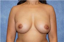 Breast Augmentation After Photo by George John Alexander, MD, FACS; Las Vegas, NV - Case 33885