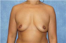 Breast Augmentation Before Photo by George John Alexander, MD, FACS; Las Vegas, NV - Case 33885