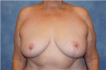 Breast Reduction After Photo by George John Alexander, MD, FACS; Las Vegas, NV - Case 33886