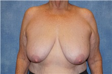Breast Reduction Before Photo by George John Alexander, MD, FACS; Las Vegas, NV - Case 33886