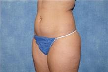 Liposuction Before Photo by George John Alexander, MD, FACS; Las Vegas, NV - Case 33890