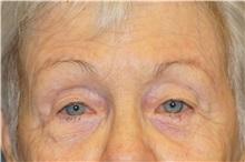 Eyelid Surgery After Photo by George John Alexander, MD, FACS; Las Vegas, NV - Case 34061