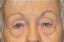 Eyelid Surgery Before Photo by George John Alexander, MD, FACS; Las Vegas, NV - Case 34061