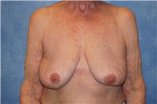 Breast Implant Removal After Photo by George John Alexander, MD, FACS; Las Vegas, NV - Case 34063