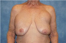 Breast Implant Removal Before Photo by George John Alexander, MD, FACS; Las Vegas, NV - Case 34063