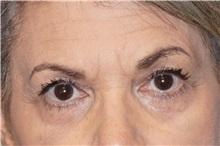 Eyelid Surgery After Photo by George John Alexander, MD, FACS; Las Vegas, NV - Case 35823