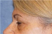 Eyelid Surgery Before Photo by George John Alexander, MD, FACS; Las Vegas, NV - Case 35823