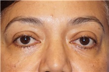 Eyelid Surgery After Photo by George John Alexander, MD, FACS; Las Vegas, NV - Case 35824