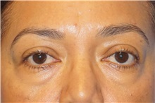 Eyelid Surgery Before Photo by George John Alexander, MD, FACS; Las Vegas, NV - Case 35824