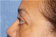 Eyelid Surgery After Photo by George John Alexander, MD, FACS; Las Vegas, NV - Case 35824