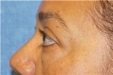 Eyelid Surgery Before Photo by George John Alexander, MD, FACS; Las Vegas, NV - Case 35824