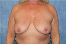 Breast Implant Removal After Photo by George John Alexander, MD, FACS; Las Vegas, NV - Case 35829