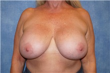 Breast Implant Removal Before Photo by George John Alexander, MD, FACS; Las Vegas, NV - Case 35829