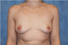 Breast Implant Removal After Photo by George John Alexander, MD, FACS; Las Vegas, NV - Case 35830