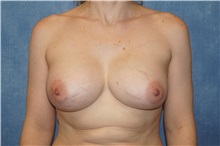 Breast Implant Removal Before Photo by George John Alexander, MD, FACS; Las Vegas, NV - Case 35830