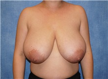 Breast Reduction Before Photo by George John Alexander, MD, FACS; Las Vegas, NV - Case 36117