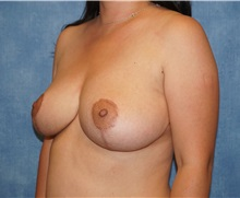 Breast Reduction After Photo by George John Alexander, MD, FACS; Las Vegas, NV - Case 36117