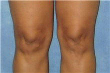 Liposuction After Photo by George John Alexander, MD, FACS; Las Vegas, NV - Case 36122