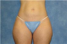 Liposuction Before Photo by George John Alexander, MD, FACS; Las Vegas, NV - Case 36129