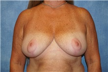 Breast Reduction After Photo by George John Alexander, MD, FACS; Las Vegas, NV - Case 36777