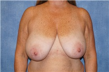 Breast Reduction Before Photo by George John Alexander, MD, FACS; Las Vegas, NV - Case 36777