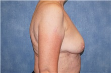 Breast Implant Removal After Photo by George John Alexander, MD, FACS; Las Vegas, NV - Case 36782