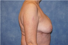 Breast Implant Removal Before Photo by George John Alexander, MD, FACS; Las Vegas, NV - Case 36782