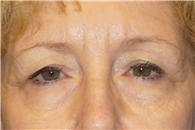 Eyelid Surgery Before Photo by George John Alexander, MD, FACS; Las Vegas, NV - Case 36788
