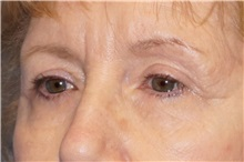 Eyelid Surgery After Photo by George John Alexander, MD, FACS; Las Vegas, NV - Case 36788
