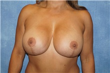 Breast Lift After Photo by George John Alexander, MD, FACS; Las Vegas, NV - Case 36795