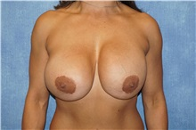 Breast Lift Before Photo by George John Alexander, MD, FACS; Las Vegas, NV - Case 36795