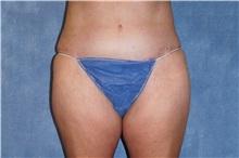 Tummy Tuck After Photo by George John Alexander, MD, FACS; Las Vegas, NV - Case 37545