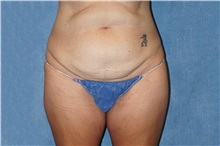 Tummy Tuck Before Photo by George John Alexander, MD, FACS; Las Vegas, NV - Case 37545