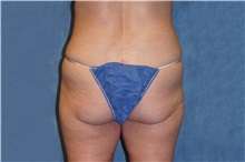 Liposuction After Photo by George John Alexander, MD, FACS; Las Vegas, NV - Case 37547