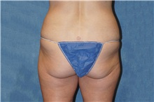Liposuction Before Photo by George John Alexander, MD, FACS; Las Vegas, NV - Case 37547