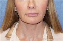 Facelift After Photo by George John Alexander, MD, FACS; Las Vegas, NV - Case 37841