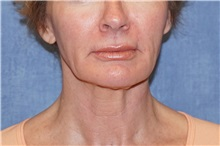 Facelift Before Photo by George John Alexander, MD, FACS; Las Vegas, NV - Case 37841