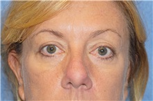 Eyelid Surgery After Photo by George John Alexander, MD, FACS; Las Vegas, NV - Case 37844