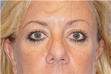 Eyelid Surgery Before Photo by George John Alexander, MD, FACS; Las Vegas, NV - Case 37844