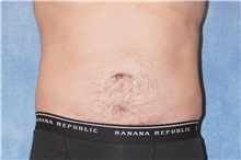 Liposuction After Photo by George John Alexander, MD, FACS; Las Vegas, NV - Case 38181