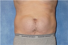 Liposuction Before Photo by George John Alexander, MD, FACS; Las Vegas, NV - Case 38181