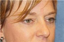 Eyelid Surgery After Photo by George John Alexander, MD, FACS; Las Vegas, NV - Case 38188