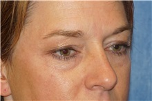 Eyelid Surgery Before Photo by George John Alexander, MD, FACS; Las Vegas, NV - Case 38188