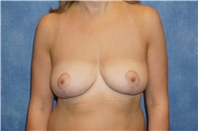 Breast Implant Removal After Photo by George John Alexander, MD, FACS; Las Vegas, NV - Case 38675